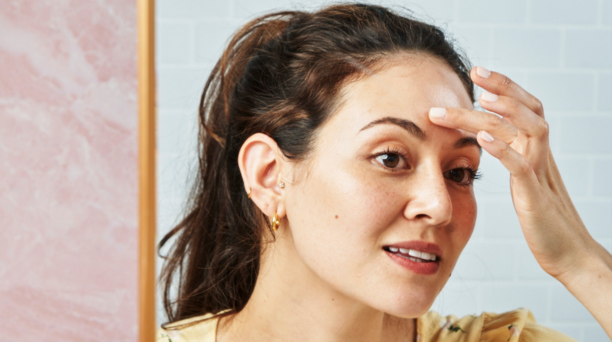Yes, You Can Pop a Pimple (As Long As You Do It Right)