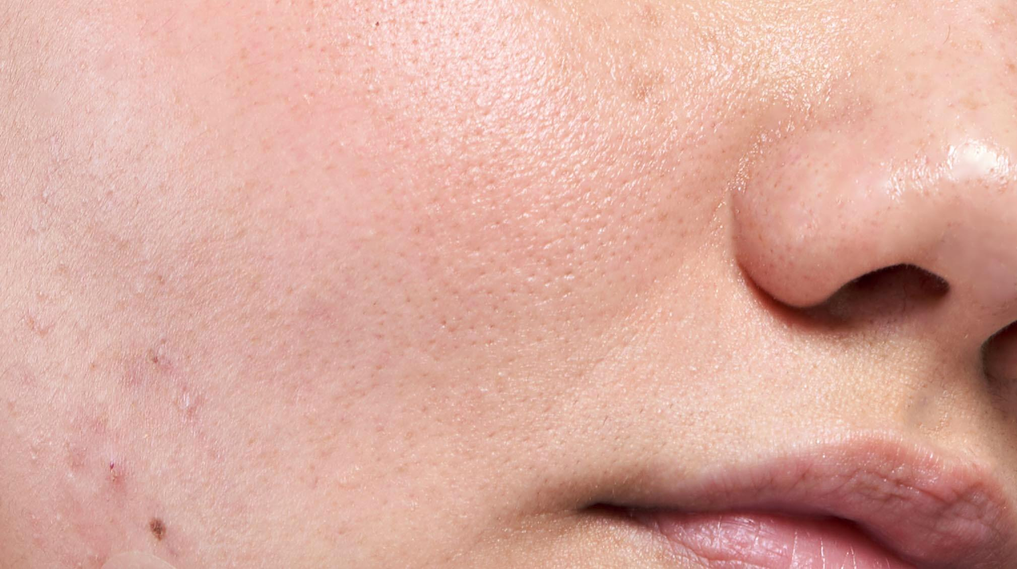 Close up of oily skin and pores