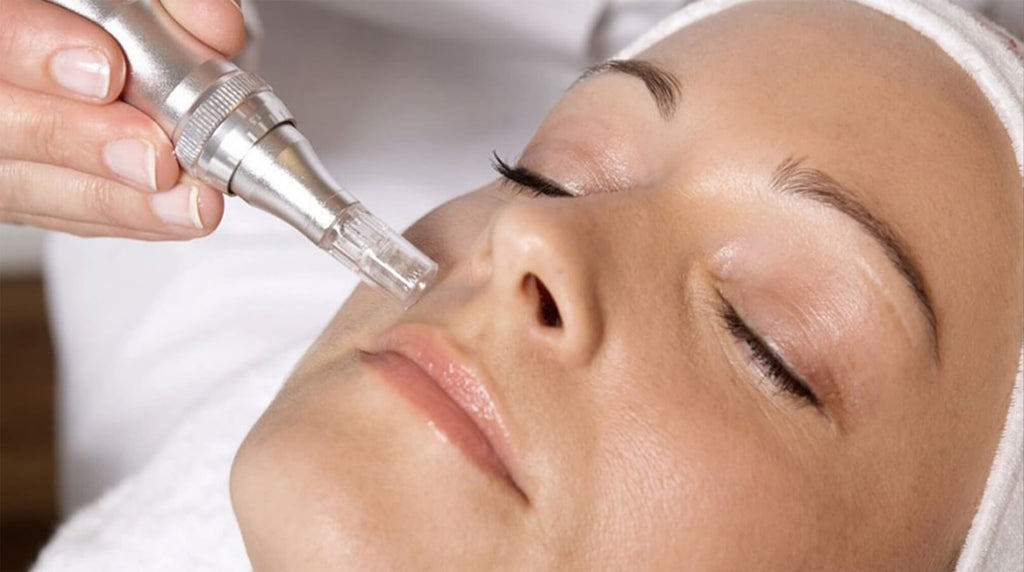woman laying down, receiving professional microneedle treatment