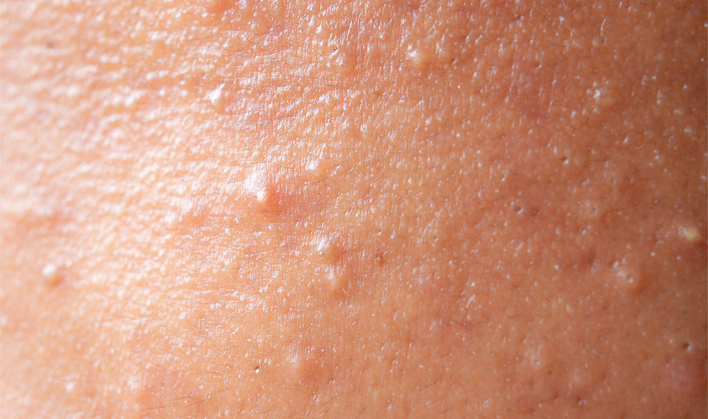 Fungal acne on forehead
