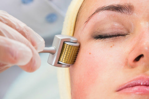 Woman using microneedle roller