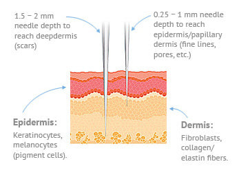 Magnified view of microneedles. 0.25-1mm reaches epidermis layer, 1.5-2mm needle reaches dermis.