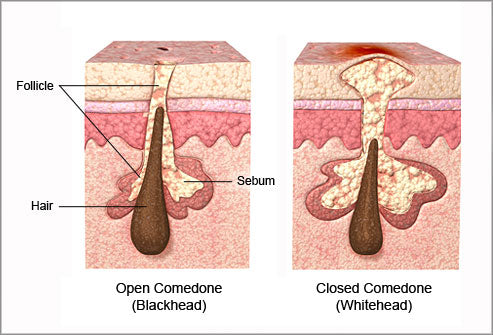 Comedonal acne (whiteheads vs blackheads)