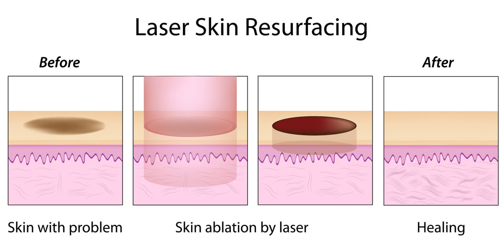 Laser resurfacing graphic