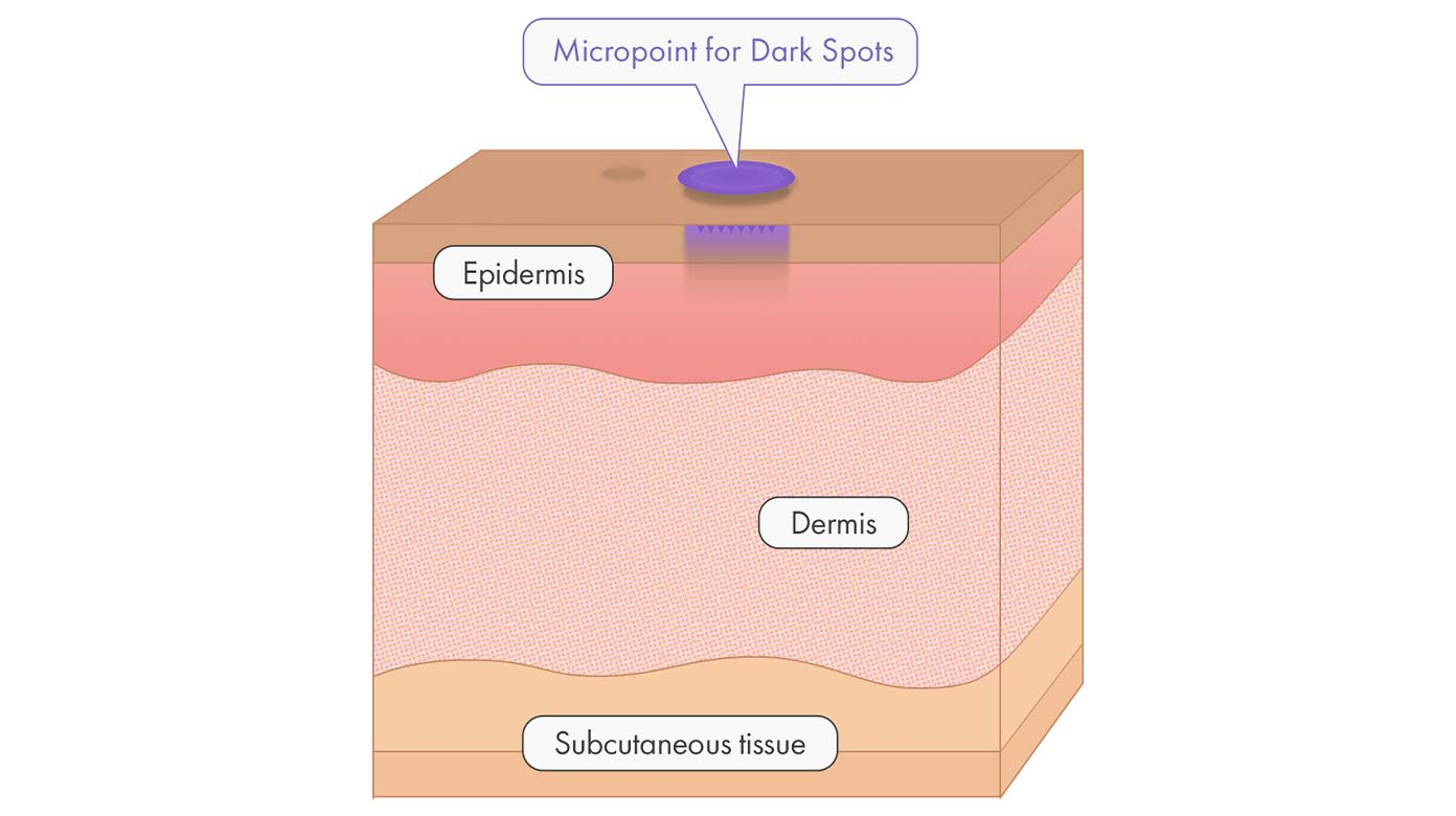 Micropoint for Dark Spots applied to hyperpigmentation spot