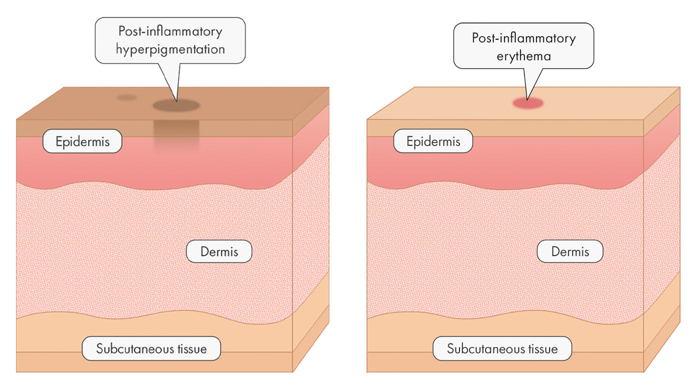 Post-inflammatory Hyperpigmentation (PIH) vs Post-inflammatory Erythema (PIE)