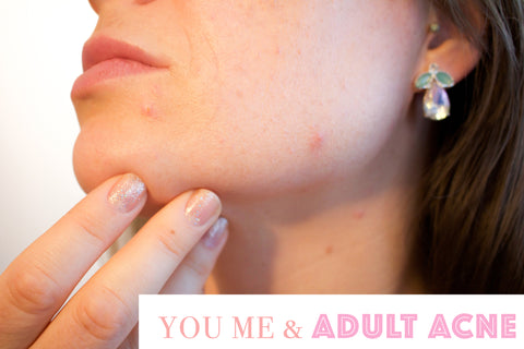 acne-the-truth