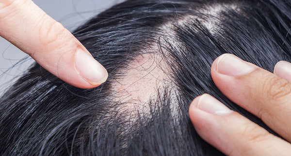 Female pattern baldness: Treatment and genetics