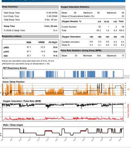 Sleep Report Service for Apex Medical Machines