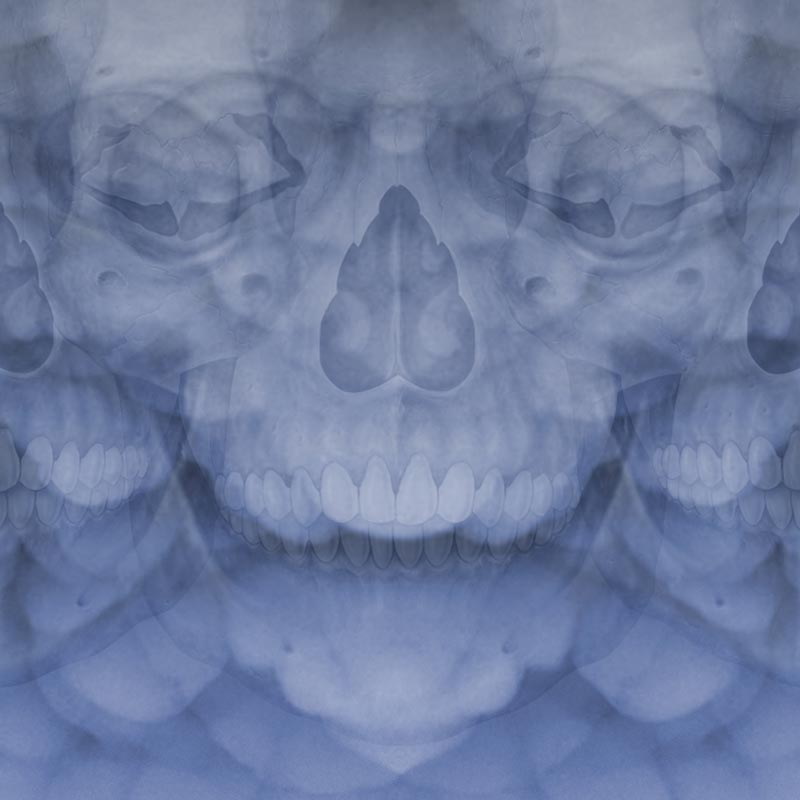 Trippy hallucination skeletons skulls