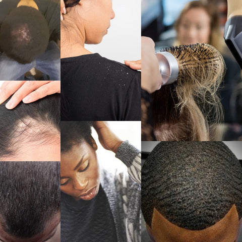 Are you Battling Dry Scalp, Breakage, Thinning, or Alopecia?