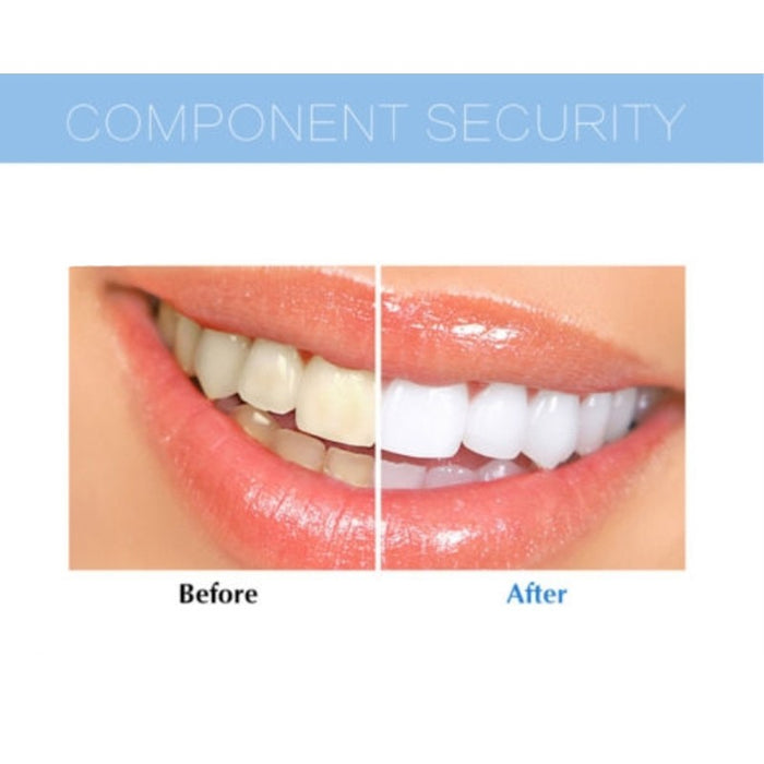 Extreme Teeth Whitening System: Bleaching LED + Oral Gel