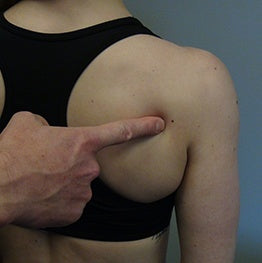 1. Locate back of shoulder