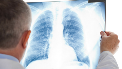 What are Pulmonary Nodules?