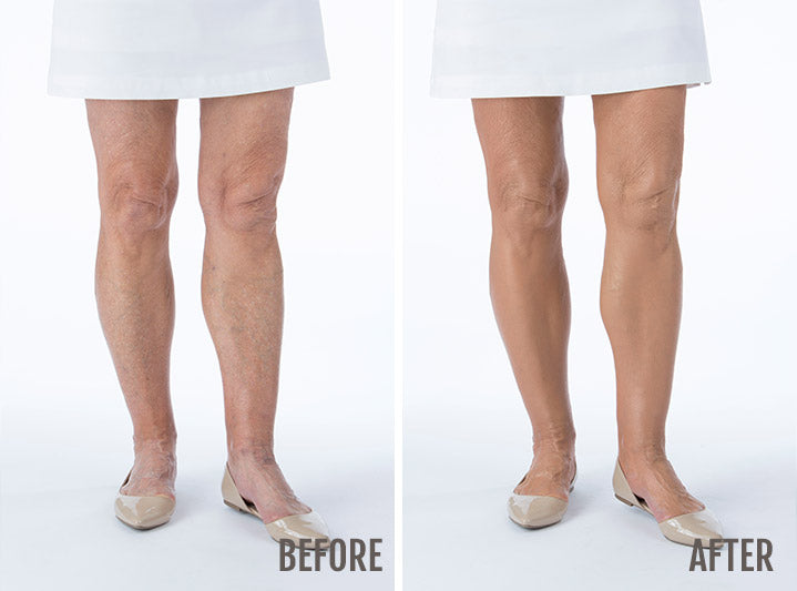Before and after photos of a woman who has applied Body Coverage Perfector on her legs