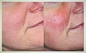 Rosacea Treatment for Face