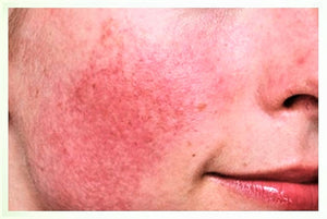 Rosacea, Acne Rosacea or Adult Acne