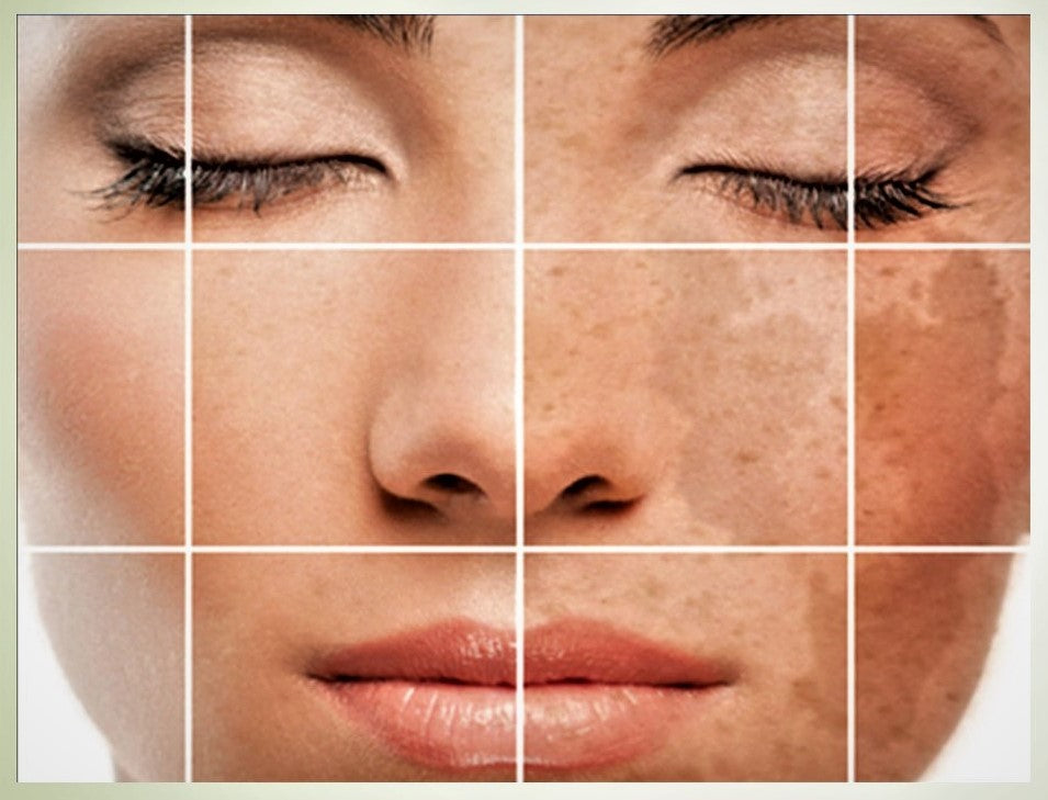 hyperpigmentation, Causes and Treatment