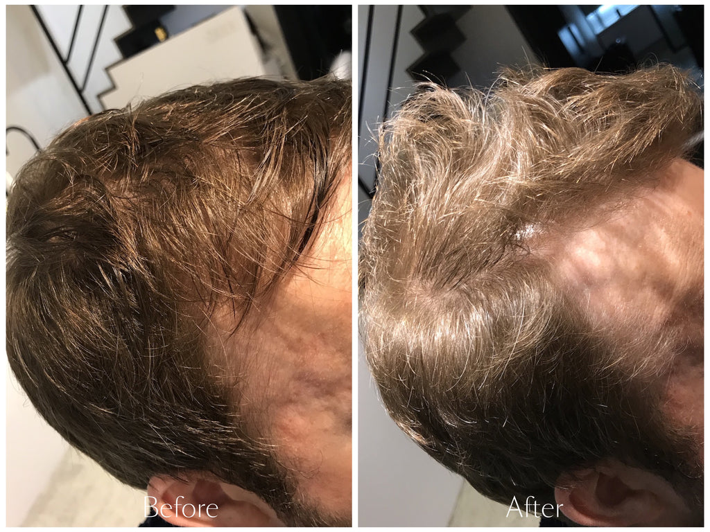 OMG Scalp Treatment (230g)