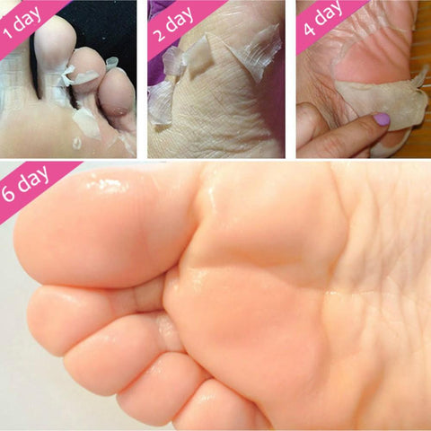 Ex-foliating Baby Feet Mask -  - Gizmostars