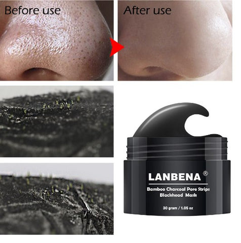 Image of LANBENA Cleansing Blackhead/Acne Remover -  - Gizmostars