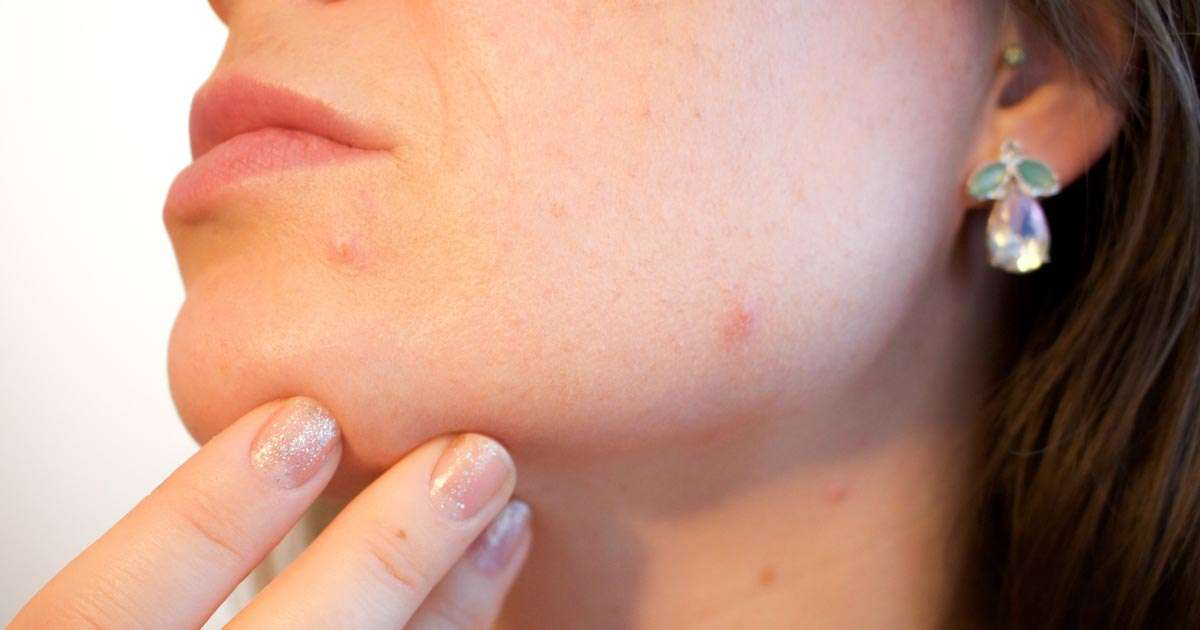 Best Acne Treatment For Adults – How To Determine The Right One
