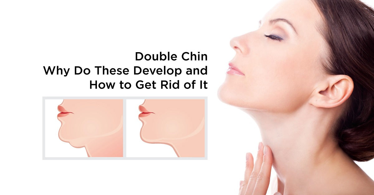 Double Chin - Why Do These Develop and How to Get Rid of It