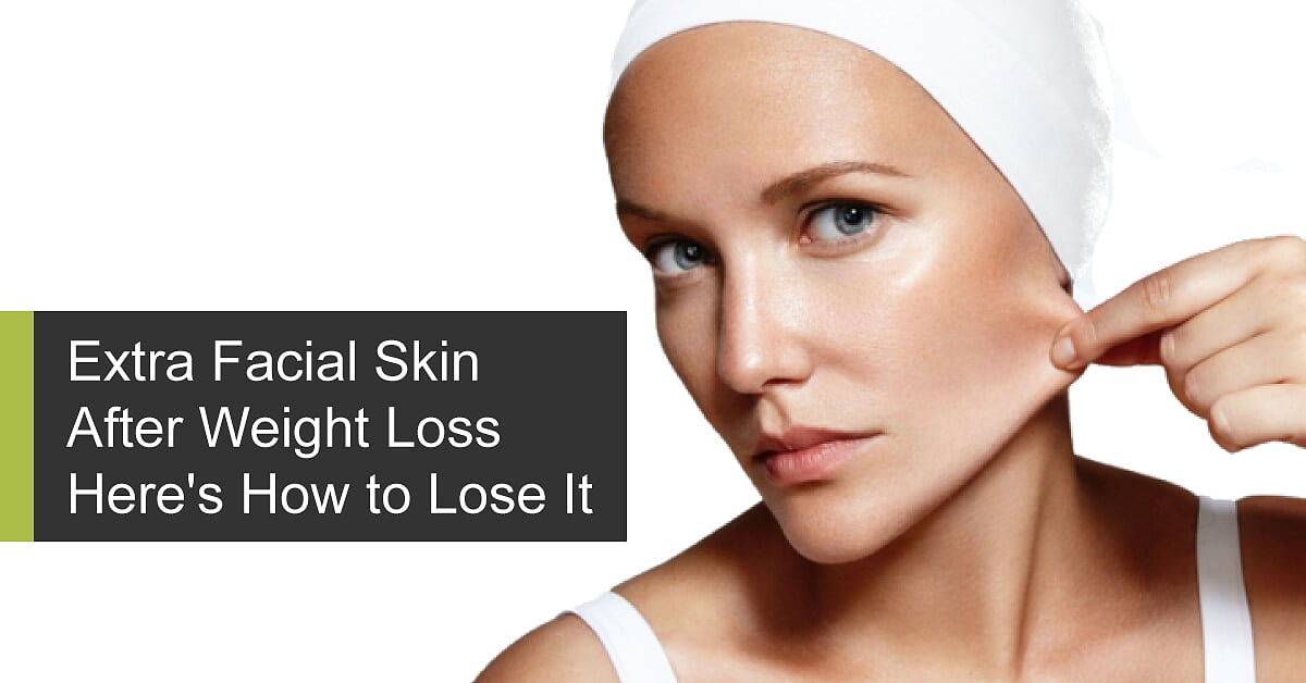 Extra Facial Skin After Weight Loss - Here's How to Lose It