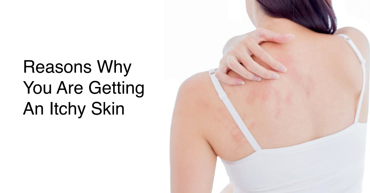 5 Reasons You Can Get Itchy Skin