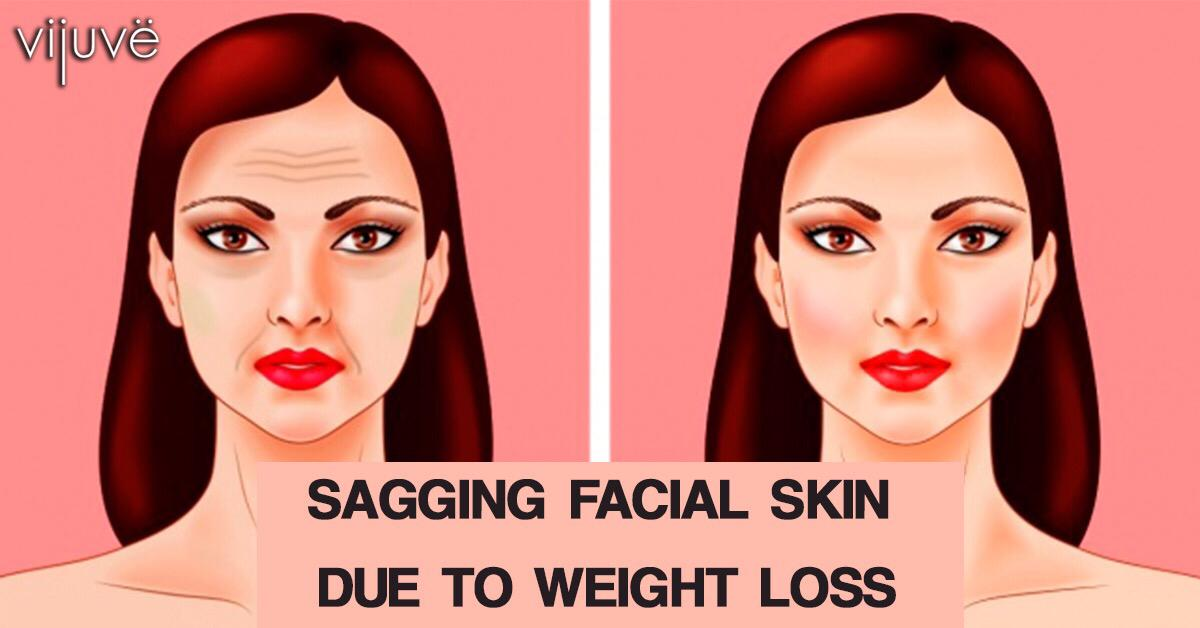 Sagging Facial Skin Due To Weight Loss