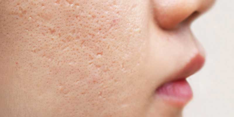 How To Determine The Right Acne Treatment For Adult Skin