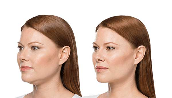 How to lose skin fat under the chin
