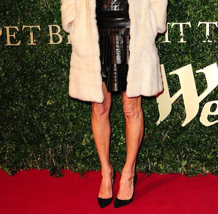 "Kate Moss can't wear some clothes because of her ""bow legs"""