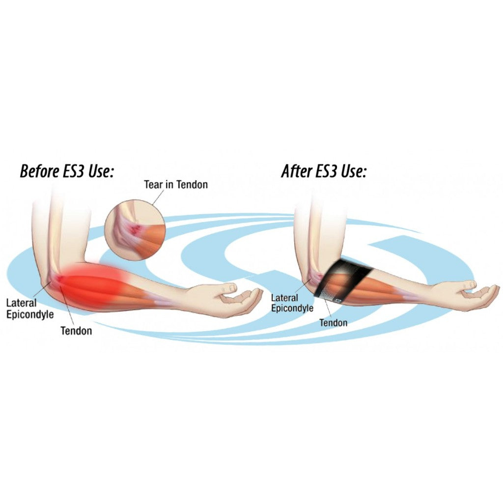 ES3 Compression Elbow Sleeve (SINGLE)