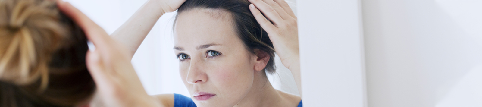 Frontal Hair Loss Problems & How to Treat Them