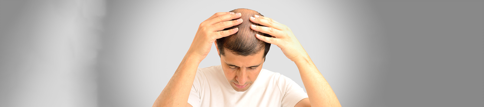 Vitamins, Minerals & Supplements to Control Your Hair Loss