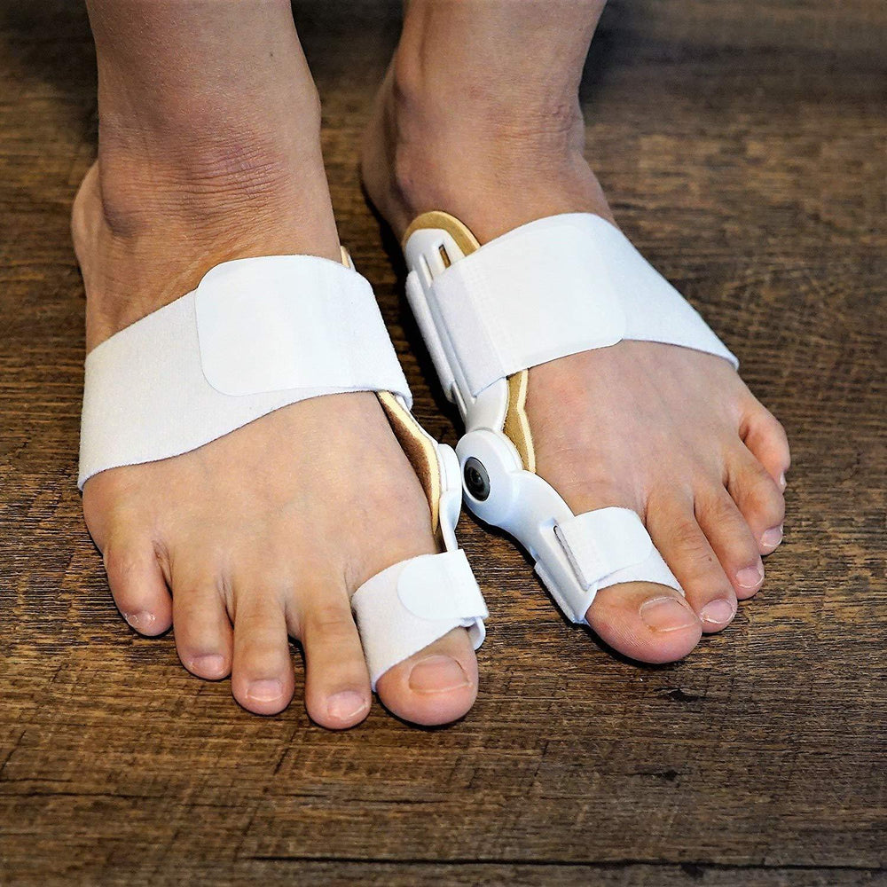 Bunions in Runners: Everything You Need