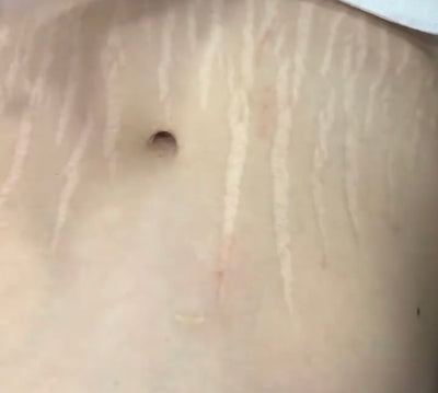Stretch Mark Camouflage with Micropigmentation