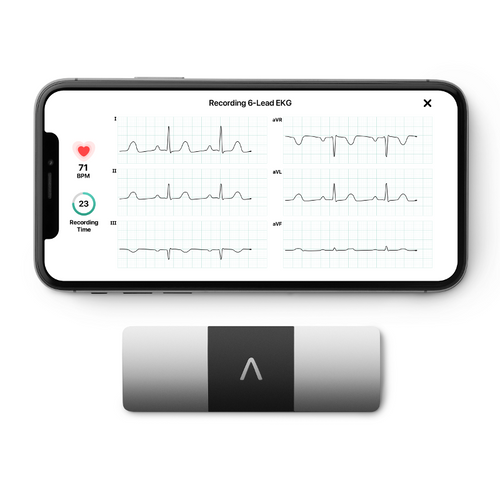 AliveCor KardiaMobile 6L ECG for iPhone and Android Free Express Post