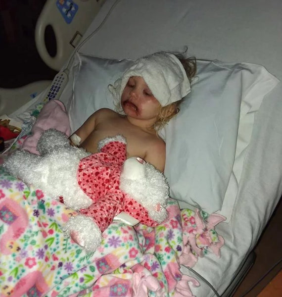 3-Year-Old Hospitalized with Severe Blisters After Playing with Toy Makeup Kit Begins Recovery