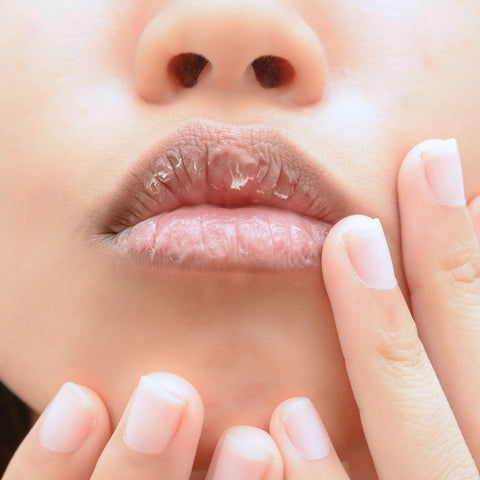 Why you get chapped lips in winter