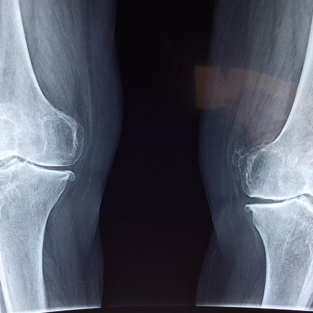 Why Are My Joints Painful?