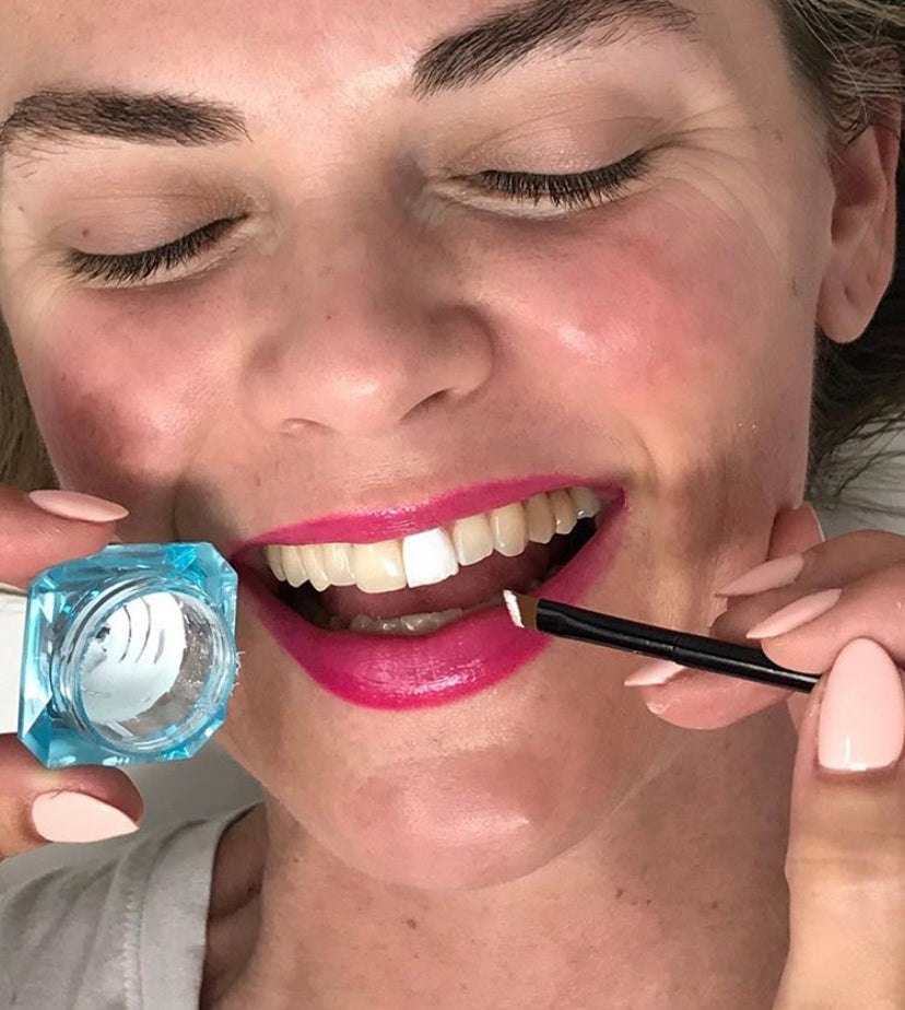 Girl having HaloSmile applied to her
