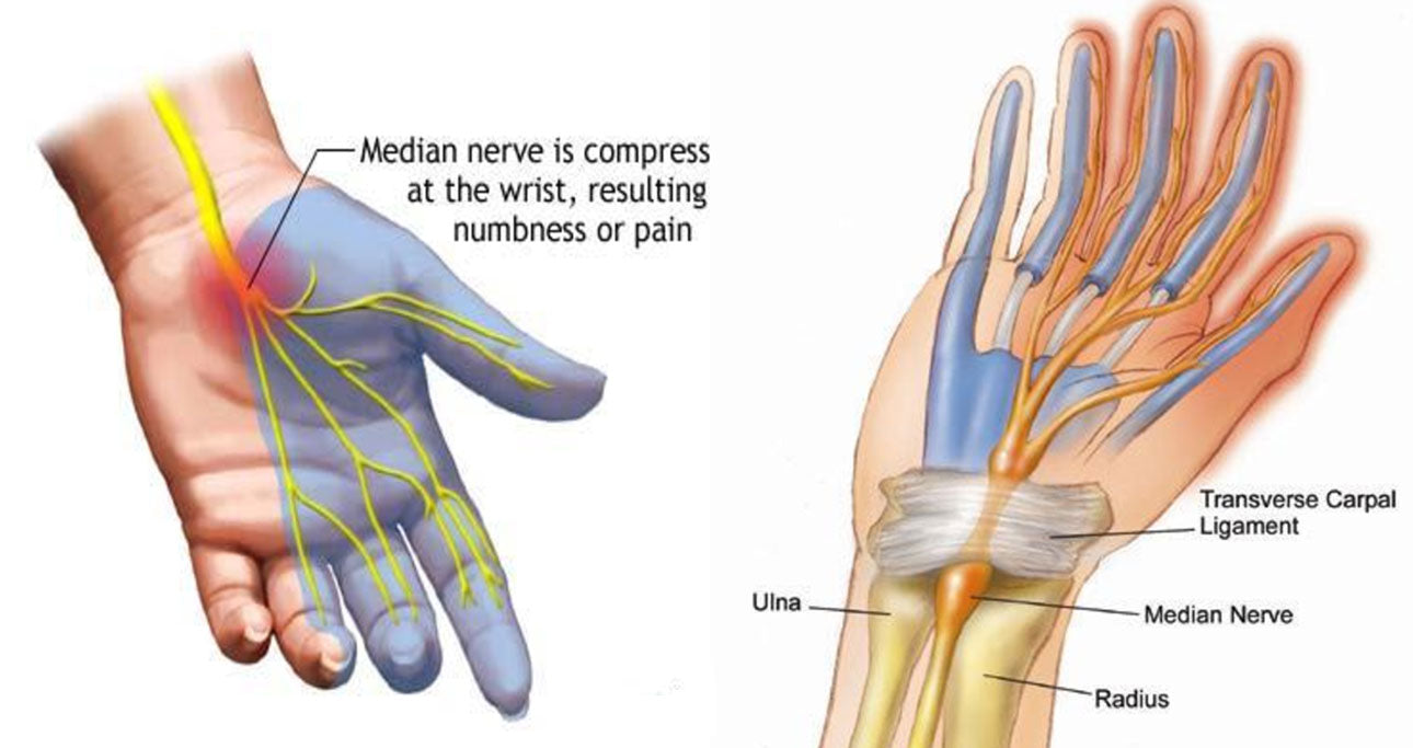 carpal tunnel syndrome - symptoms & treatment – brace yourself online