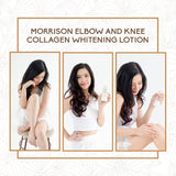Morrison Elbow & Knee Whitening Lotion, 50ml