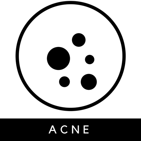 all natural vegan acne treatment