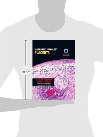 Diagnostic Pathology: Placenta, 1e