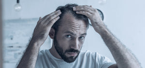 Could Stress be the Cause of your Hair Loss?