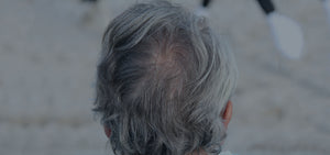 Can Vitamins Save Hair From Going Grey?