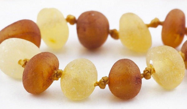 What You Need to Know Before Buying Amber Teething Necklaces